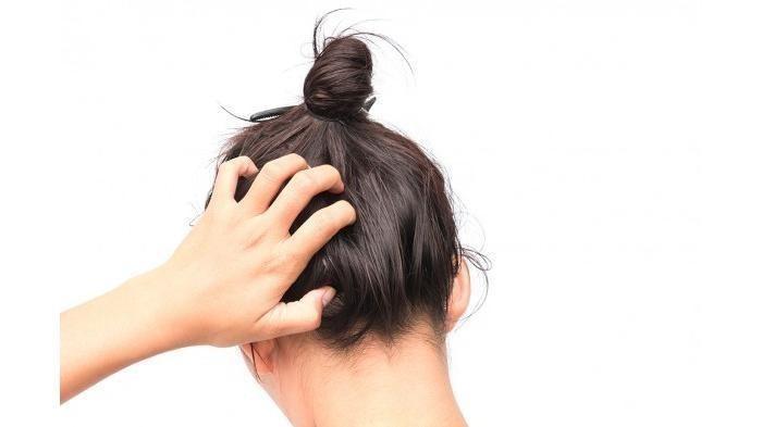 Punya Masalah Kulit Kepala yang Gatal? Ternyata 3 Hal ini Bisa Menjadi Penyebabnya