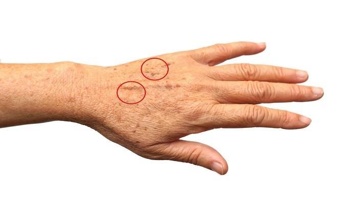 Muncul Bintik Coklat Pada Kulit Tangan? Jangan Panik, Atasi dengan Cara Ini
