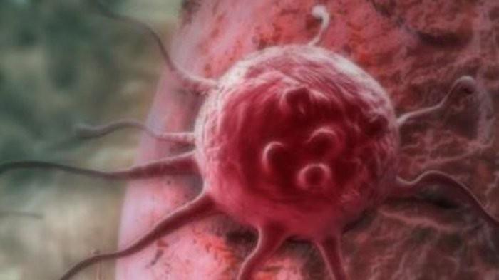 Selain Kanker Serviks, Ada 6 Jenis Kanker yang Bisa Menyerang Sistem Reproduksi Wanita