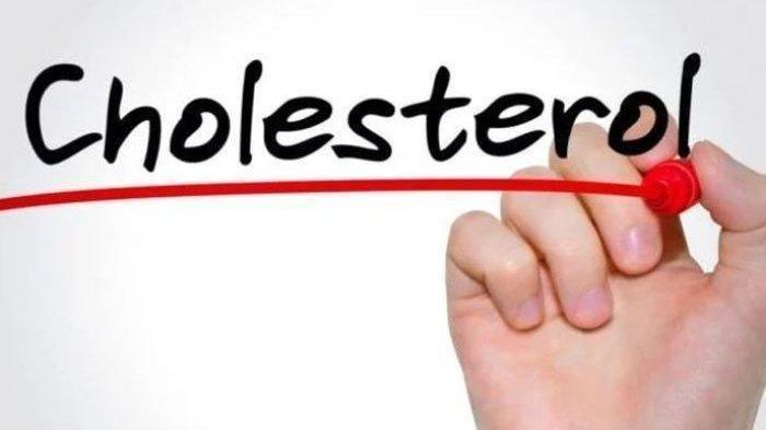 Simak 6 Jenis Buah-Buahan yang Bisa Bantu Menurunkan Kolesterol, Salah Satunya Buah Alpukat