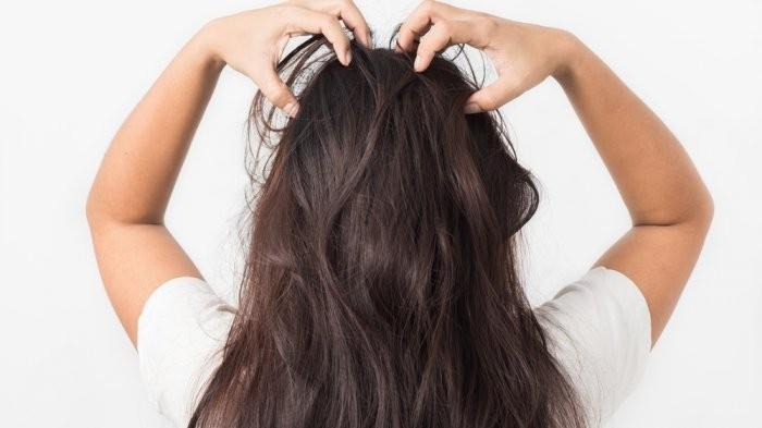 Cara Simpel Atasi Masalah Rambut Rontok dengan Jahe, Begini Caranya