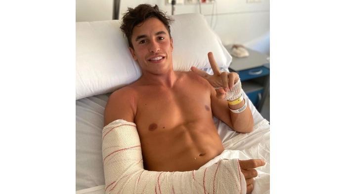 Pembalap Moto GP Marc Marquez mengalami patah tulang tangan kanan