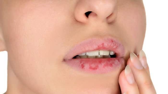 Jangan Lagi Lakukan, Ini Bahaya Punya Kebiasaan Mengelupas Kulit Bibir yang  Kering - Halaman all - Blog TribunJualBeli.com