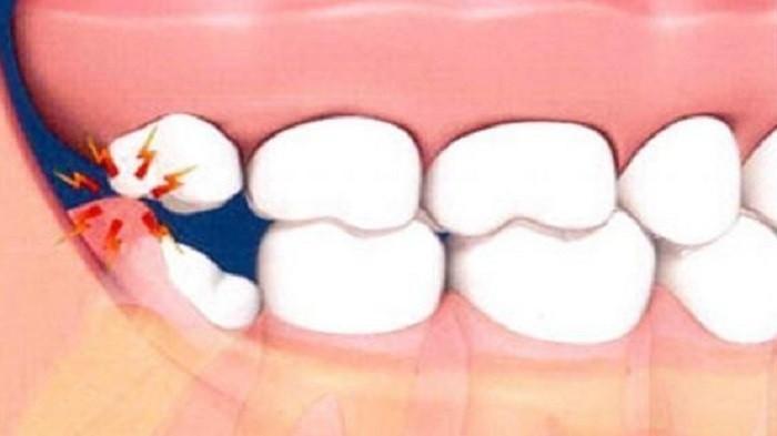 Sebelum ke Dokter, Ikuti Cara Ini untuk Atasi Rasa Sakit Pada Gigi Geraham yang Tumbuh