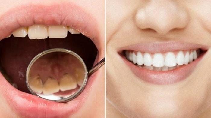 Manfaatkan 6 Bahan Alami Ini untuk Membersihkan Karang Gigi