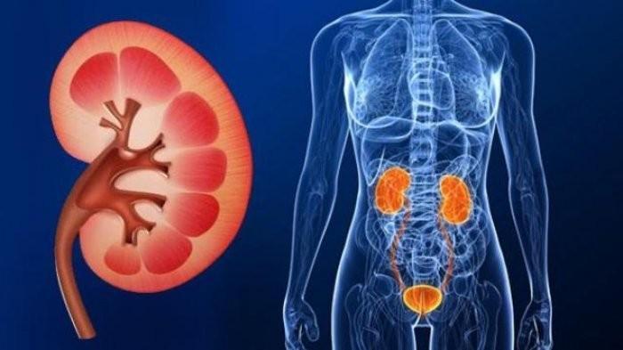 Waspadai 12 Gejala Kanker Ginjal yang Jarang Disadari